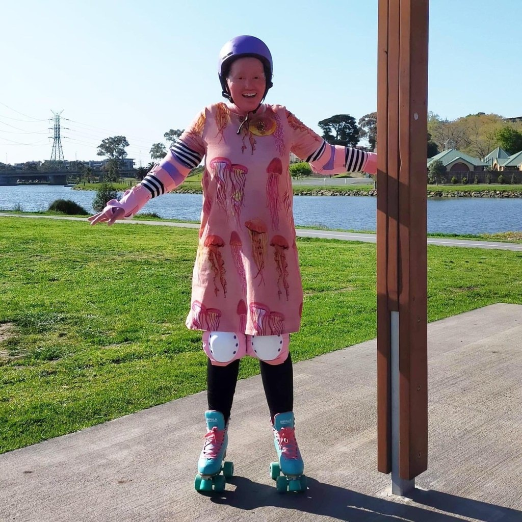 Author Carly Findlay has bought rollerskates to keep sane in lockdown, here is an image of her trying them out